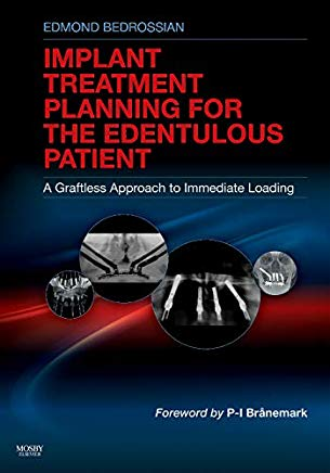 Implant Treatment Planning for the Edentulous Patient: A Graftless Approach to Immediate Loading Cover