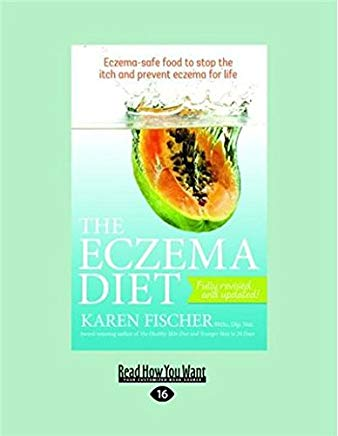 The Eczema Diet Eczema-Safe Food To Stop: Eczema-Safe Food to Stop The Itch and Prevent Eczema for Life Cover